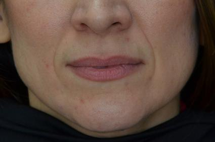 Dermal Fillers Before | Dallas, TX | Dallas Center for Dermatology and Aesthetics