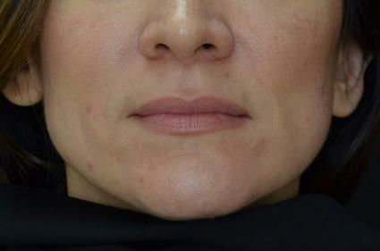 Dermal Fillers After | Dallas, TX | Dallas Center for Dermatology and Aesthetics