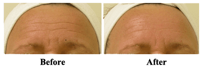 HydraFacial MD before & after